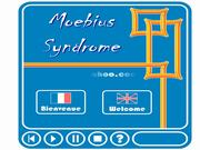 Moebius Syndrome